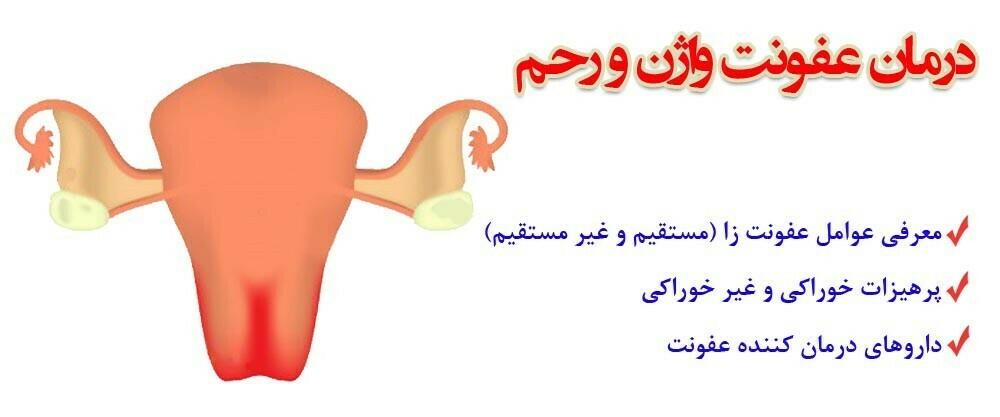 درمان عفونت واژن